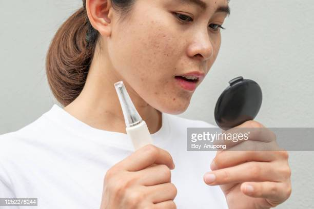 asian woman worry when she saw acne and scar problem on her face and she holding acne cream for treat it. - acne rosacea foto e immagini stock