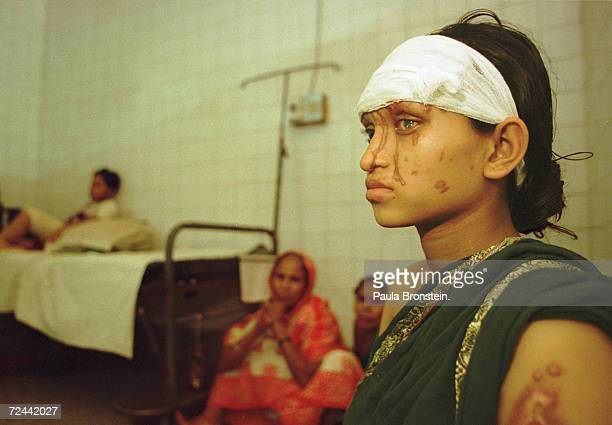 Asma a Bangladeshi woman suffering burns from a battery acid attack sits in a hospital July 2000 in Dhaka Bangladesh Asma is eight months pregnant...