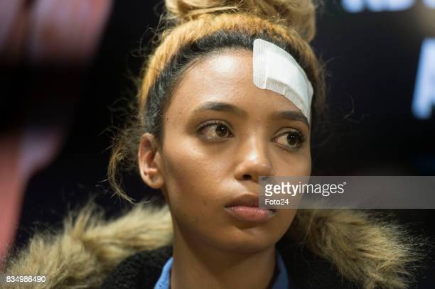 Assault victim Gabriella Engels attends the AfriForum press conference on August 17 2017 in Centurion South Africa Zimbawe first lady Grace Mugabe is...