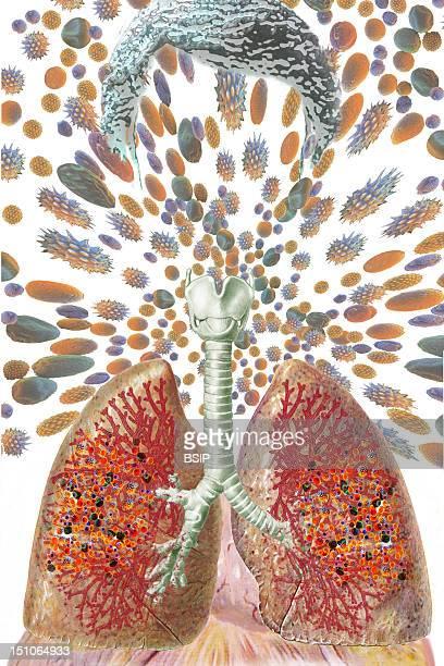Asthma Drawing