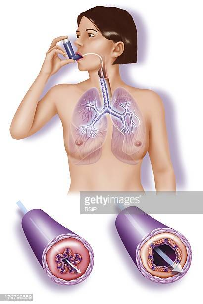 Asthma Treatment Illustration Woman Using An Inhaler To Calm An Asthma Attack The Two CloseUps At The Bottom Show The State Of The Bronchial Tubes...