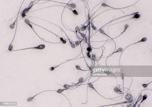 SPERMATOZOA, HUMAN, 250X at 35mm.  Shows the head and flagellum (tail).