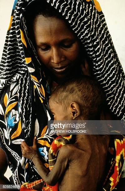 At a clinic in Mogadishu a mother holds her starving child during famine