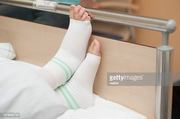 at the clinic - foot in bed with thrombosis stockings - blood clot stock pictures, royalty-free photos & images