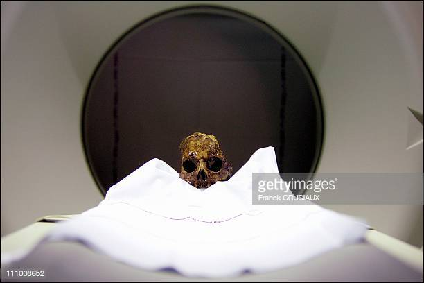 At the Lille hospital, the skull of Agnes Sorel died in 1450Ñ inside the TDM scanner in Lille, France in March, 2005.