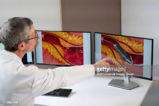 atheroma plaque and stent - ステント ストックフォトと画像