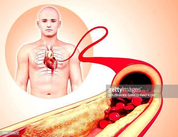 Atherosclerosis, computer artwork.