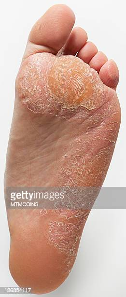 athlete's foot and callus - schimmelinfectie stockfoto's en -beelden