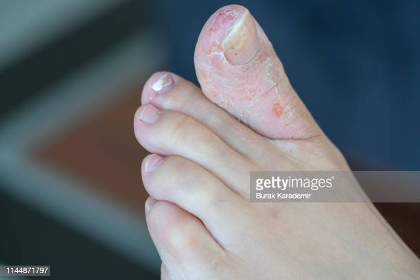athlete's foot - infectious disease stock pictures, royalty-free photos & images