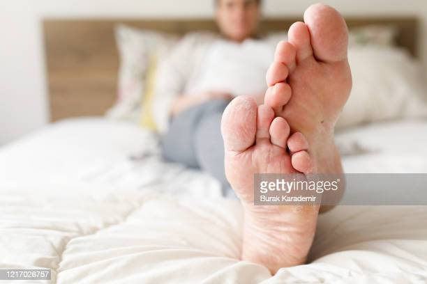 athlete's foot - images of ugly feet stock pictures, royalty-free photos & images