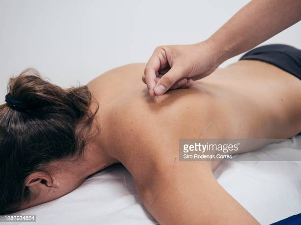 athletic woman receiving a dry needling treatment - acupuncture needle stock pictures, royalty-free photos & images