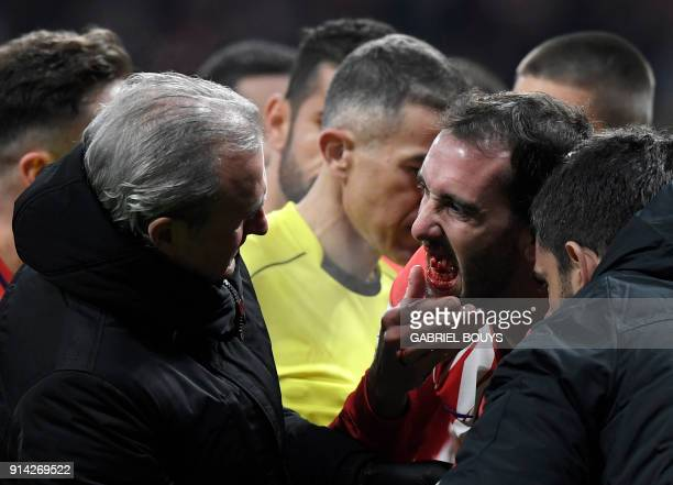 TOPSHOT Atletico Madrid's Uruguayan defender Diego Godin shows his mouth to the team's doctor after resulting injured during the Spanish league...