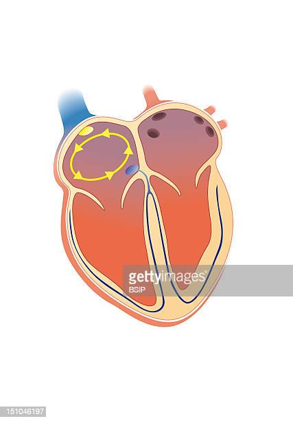 Atrial Flutter Is A Disorder Of Teh Rhythm It Is Defined As The Quick Contraction Of The Atria Atrial Tachycardia Steady And Continous With A Saw...