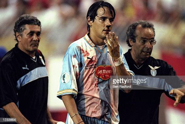 Simone Inzaghi of Lazio comes off the pitch with a bloody nose during the UEFA Super Cup match against Manchester United in Monaco Mandatory Credit...