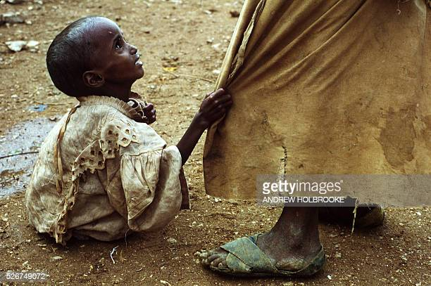 August 1992 Baidoa Somalia Starving child at the Irish Concern feeding center in Baidoa desperately holds on to her brother's cloak During the famine...