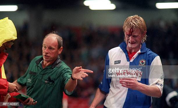 31 August 1994 Premiership Arsenal v Blackburn Rovers Colin Hendry of Blackburn has a huge cut on his forehead which catches the attention of the...