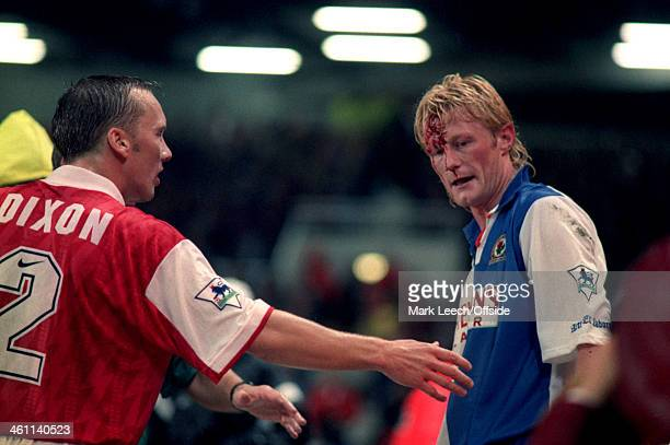 31 August 1994 Premiership Arsenal v Blackburn Rovers Colin Hendry of Blackburn has a huge cut on his forehead which catches the attention of Arsenal...