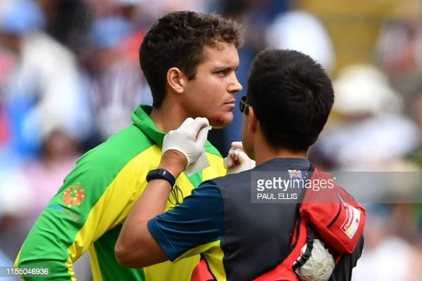 TOPSHOT Australia's Alex Carey receives medical attention after being hit by a ball off the bowling of England's Jofra Archer during the 2019 Cricket...