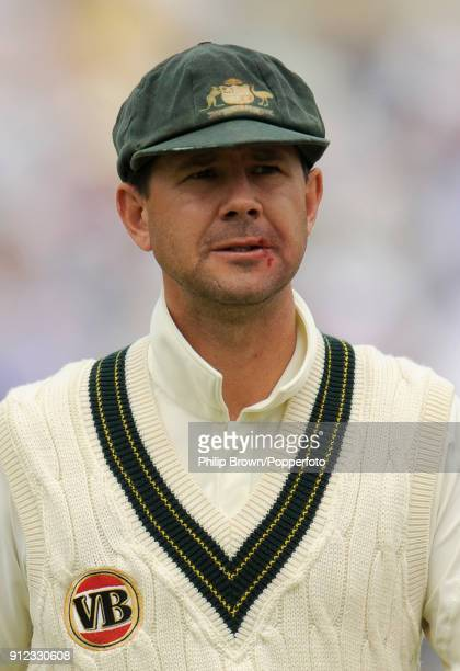 Australia's Ricky Ponting leaves the field for the lunch interval with a bloody lip after being hit in the face by the ball during the 5th Test match...