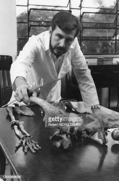 Autentification des restes de Josef Mengele par le docteur Daniel Munoz de l'institut médico-légal de Sao Paulo, en mars 1986, Brésil.