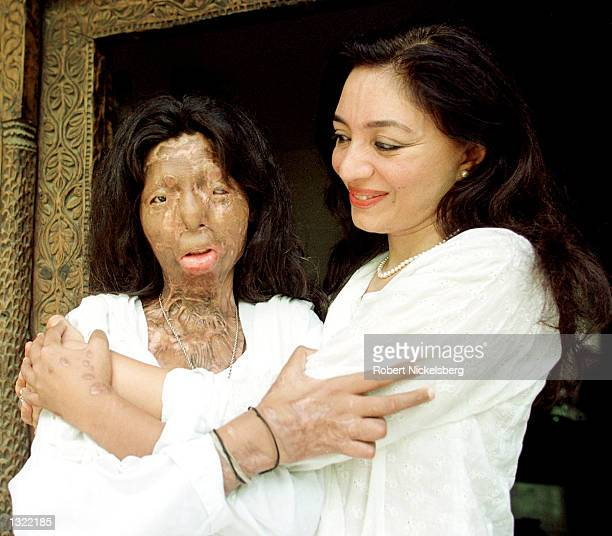 Author and social activist Tehmina Durrani right hugs Fakhra Khar a 21yearold former dancer and prostitute who had acid thrown on her face a year ago...