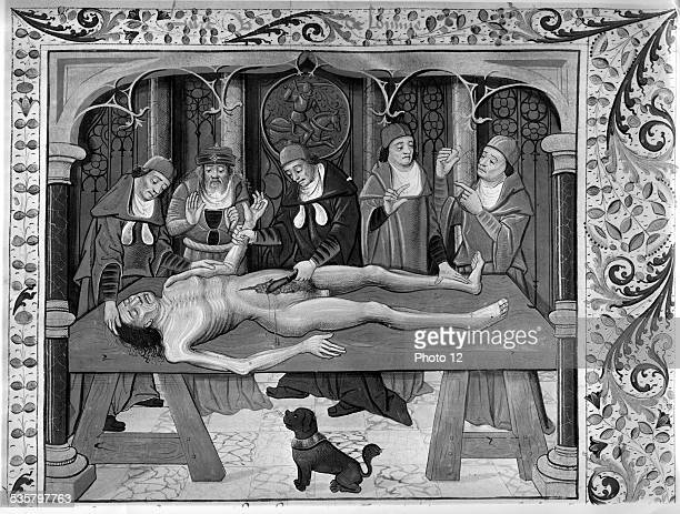 Autopsy during Middle Ages Engraving published in 'Le Propriétaire des Choses' written by Bartholomeus Anglicus 15th century