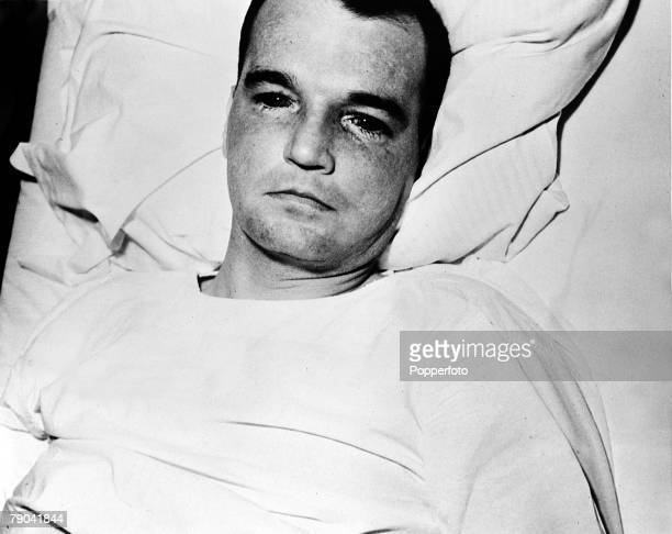 1955 UStest pilot George Smith recovering in hospital shortly after an air accident when he used his ejector seat at supersonic speed This caused the...