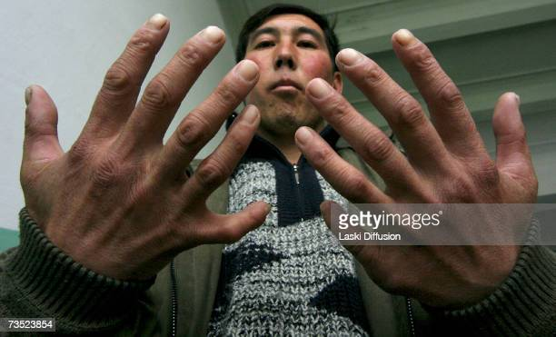 Azamat Kazizov born not far from MailuuSuu the only of seven siblings with 12 fingers and 12 toes shows off his deformity in this photo taken in...