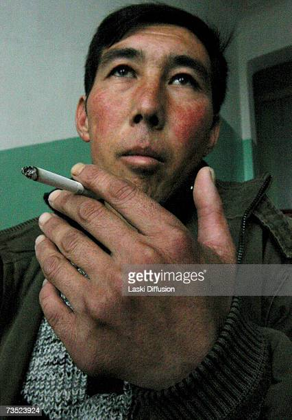 Azamat Kazizov born not far from MailuuSuu the only of seven siblings with 12 fingers and 12 toes smokes a cigarette in this photo taken in January...
