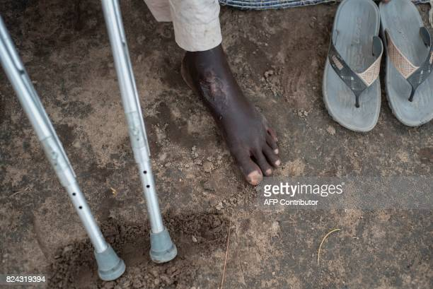Babagana Jugudum who got injured during a mistaken airstrike shows his injured foot on Rann in northeast of Nigeria close to the Cameroonian border...