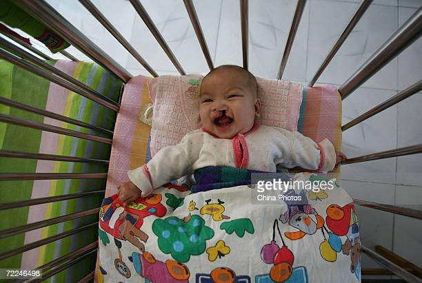 A baby afflicted with a cleft lip and palate lies in a crib at the Xining Orphan and Disabled Children Welfare Center on October 21 2006 in Xining of...