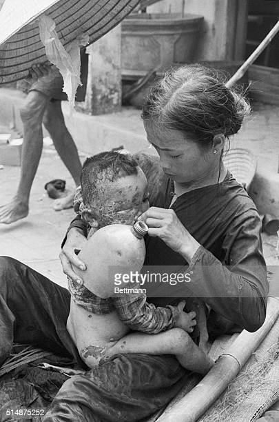 A baby burned by napalm in Operation Colorado which began in the area on August 11 sits on its mother's lap in Cam Che Vietnam and tries to drink...
