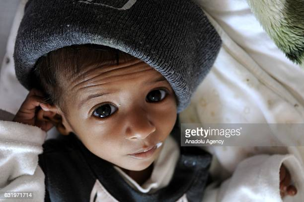 A baby gets treatment at the Sabaeen hospital in Sanaa Yemen on January 18 2017 Thousands of families in Yemen face food safety and malnutrition...