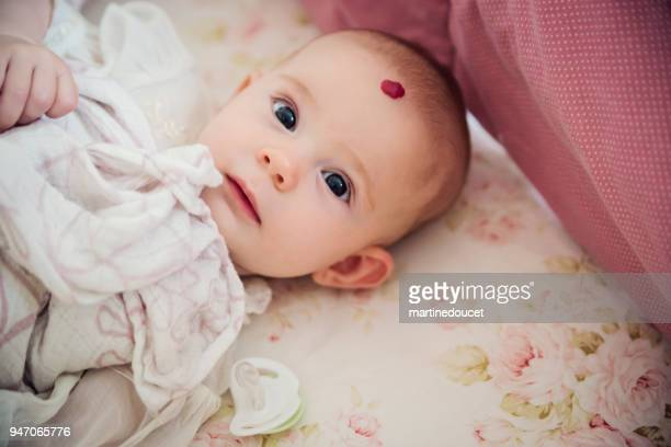 baby girl with hemangioma waking up. - hemangioma imagens e fotografias de stock