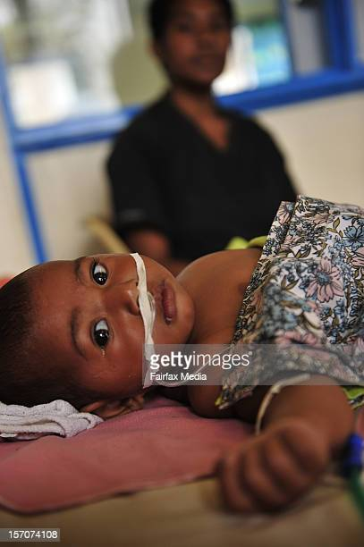 A baby lays in the paediatric ward of a hospital on August 14 2009 in Goroka in the Eastern Highlands province of Papua New Guinea Since 1996 the...