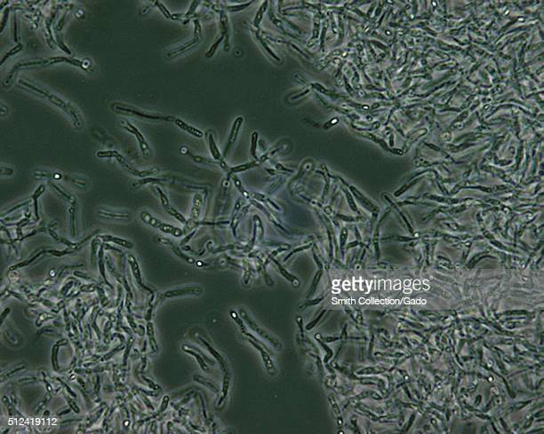Bacillus anthracis spores seen under phase contrast microscopy Bacillus anthracis endospores are seen under phase contrast microscopy as lighter...
