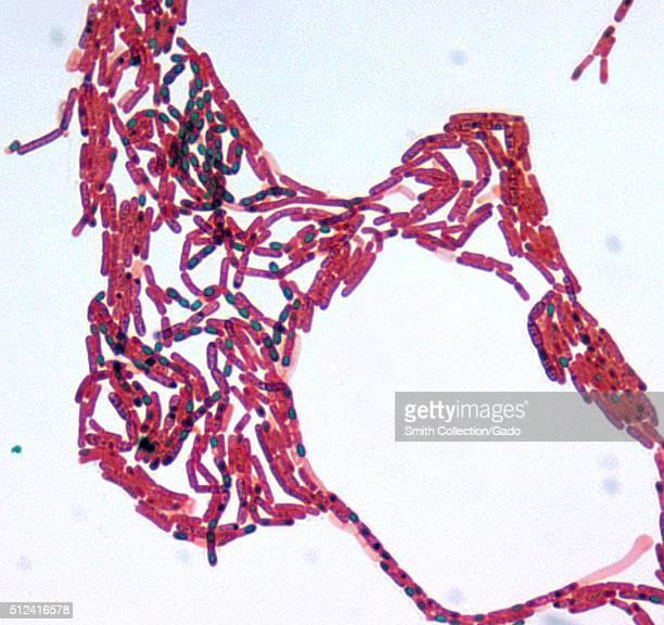 Bacillus sp Malachite Green spore stain at a 1000x magnification Image courtesy CDC/Courtesy of Larry Stauffer Oregon State Public Health Laboratory...