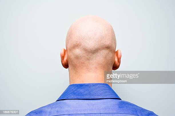 Back of man ist bald head