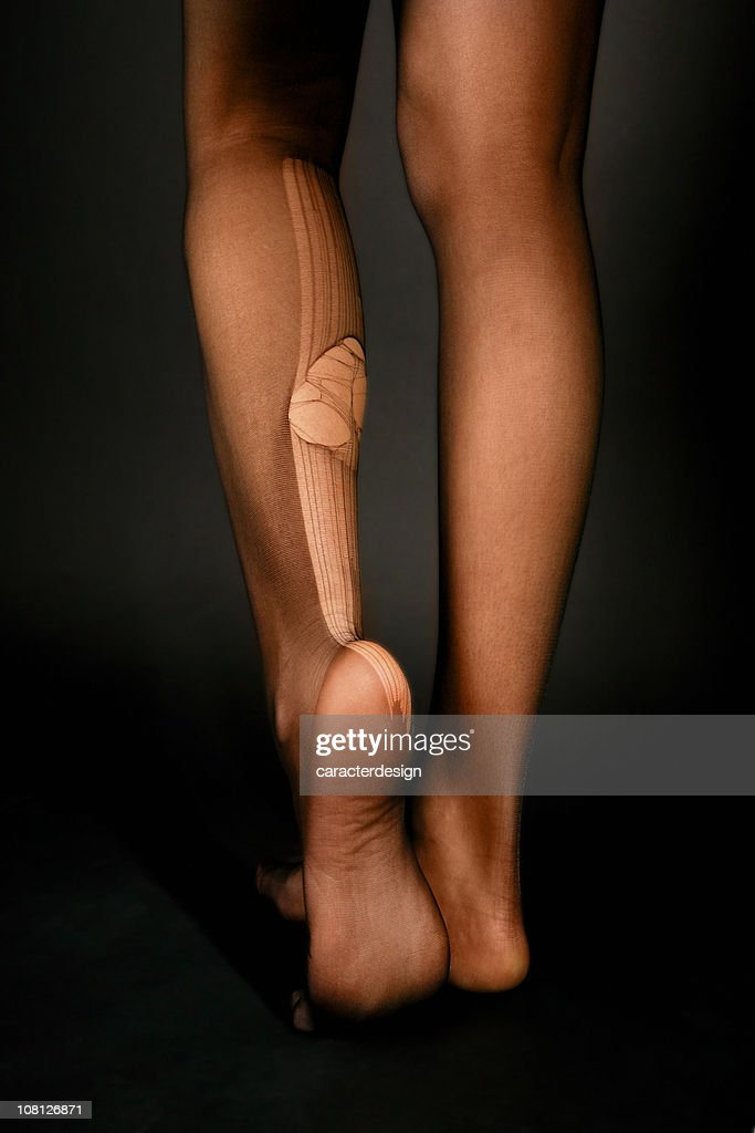 Back of Young Woman's Legs with Huge Run in Stockings : Stock Photo