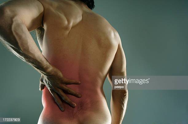 back pain - bruise stock pictures, royalty-free photos & images