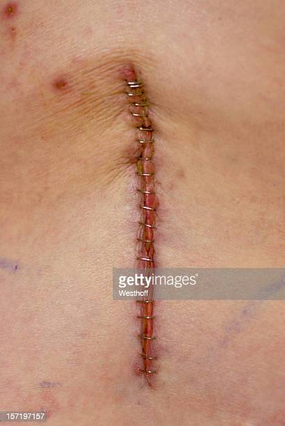 back surgery - medical stitches stock photos and pictures
