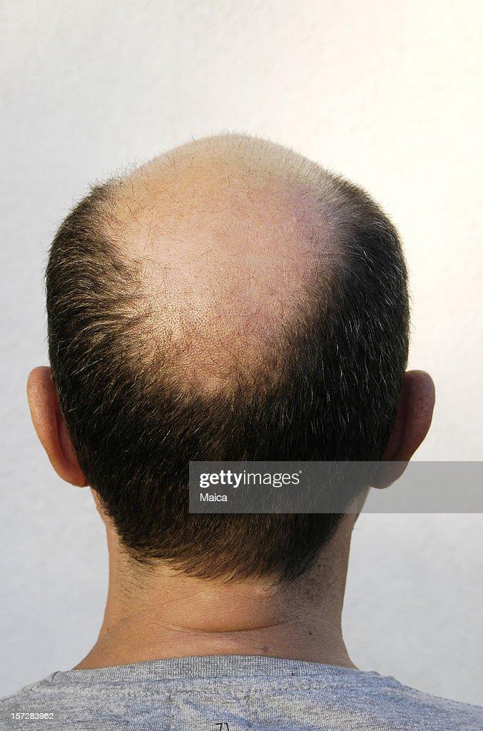 bald patch