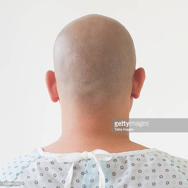 Back view of patient with shaved head