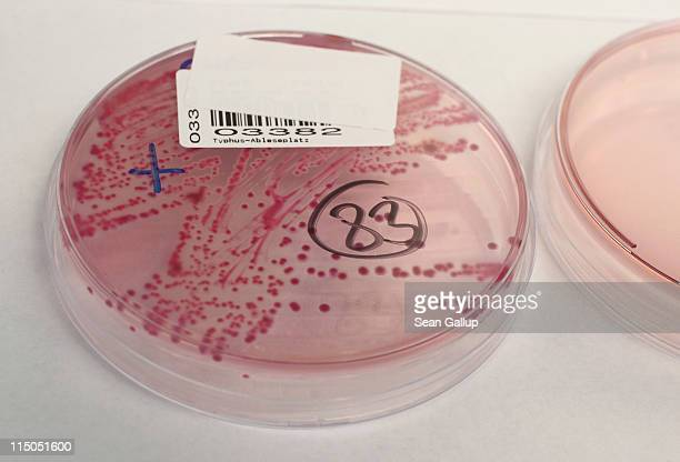 A bacteria culture that shows a positive infection of enterohemorrhagic E coli also known as the EHEC bacteria in a patient lies on a table in the...