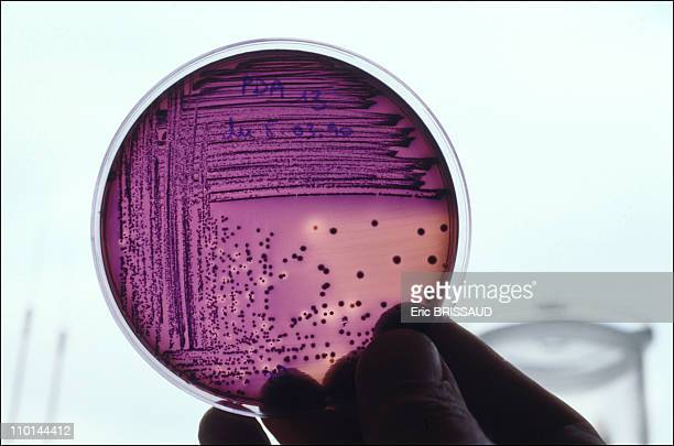 Bacteria from infected water in Paris, France in March, 1990.