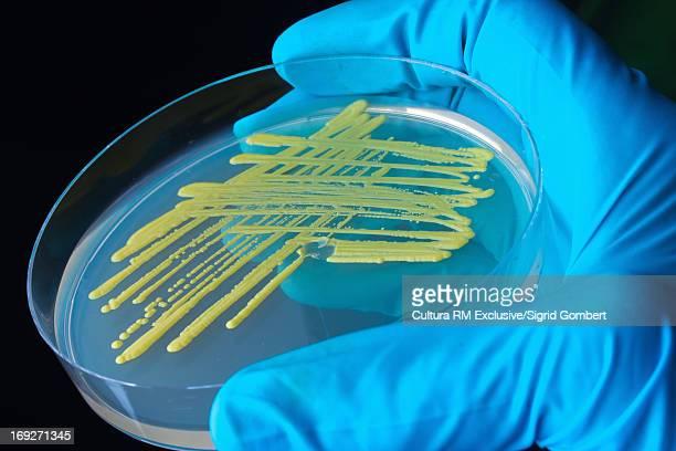 bacteria growing in petri dish in lab - sigrid gombert imagens e fotografias de stock