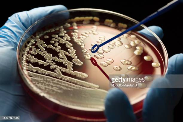 mrsa bacteria - bacterium stock pictures, royalty-free photos & images