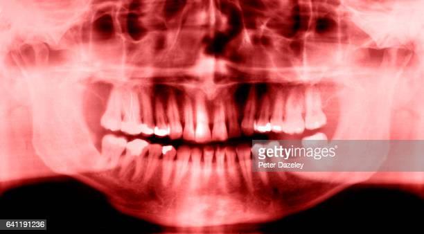 Bad dental hygiene
