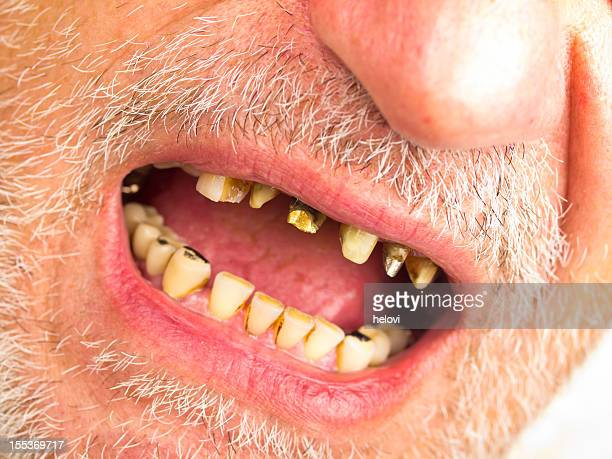 bad teeth - bad teeth stock photos and pictures
