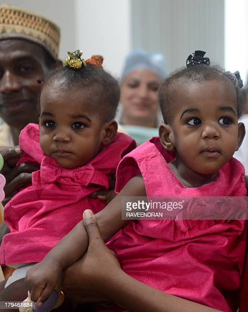 Badaru Mannir holds his daughter Hassana Badaru while Hussaina Badaru is held by her mother after a surgery to separate the conjoined twins at BLK...